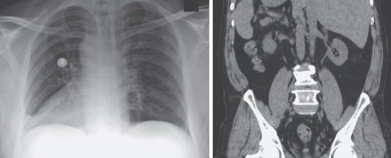 Homem de 66 anos descobre que viveu com seus órgãos invertidos