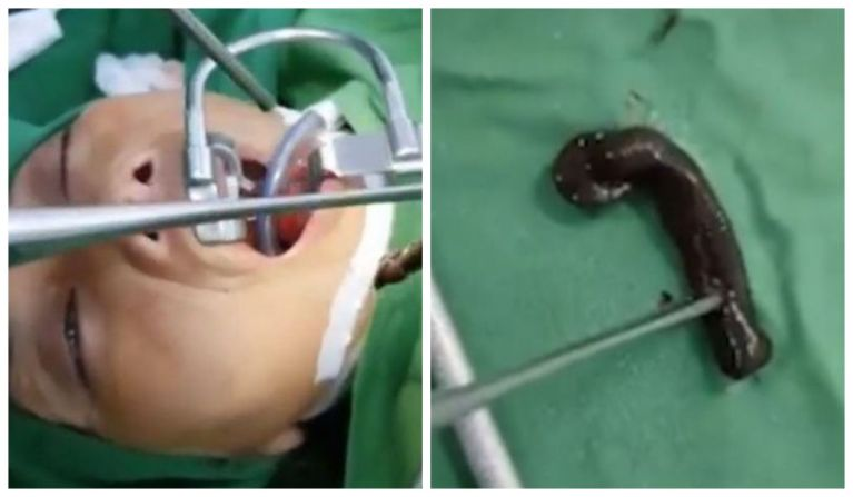 Médicos retiram sanguessuga de 15 centímetros vivendo por meses na garganta de vietnamita