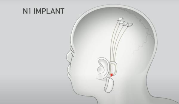 Implante 600x349, Fatos Desconhecidos