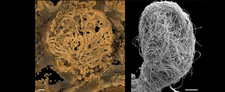 Espermatozoide animal mais antigo do mundo é descoberto em âmbar de 100 milhões de anos