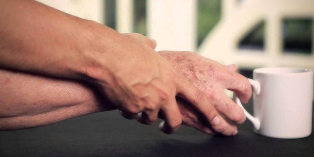 Existe uma preocupação que o COVID-19 possa desencadear uma onda de doença de Parkinson
