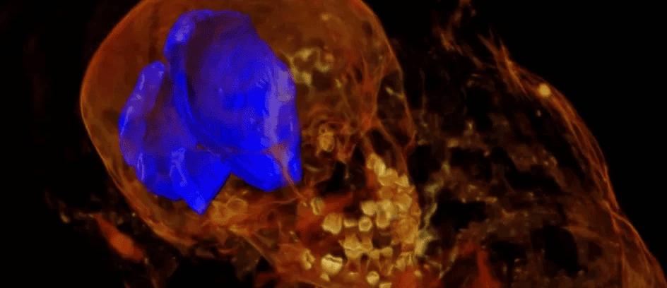 Radiografias de múmias antigas mostram uma descoberta surpreendente