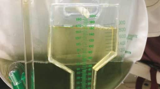 Por que a urina desse homem ficou verde?