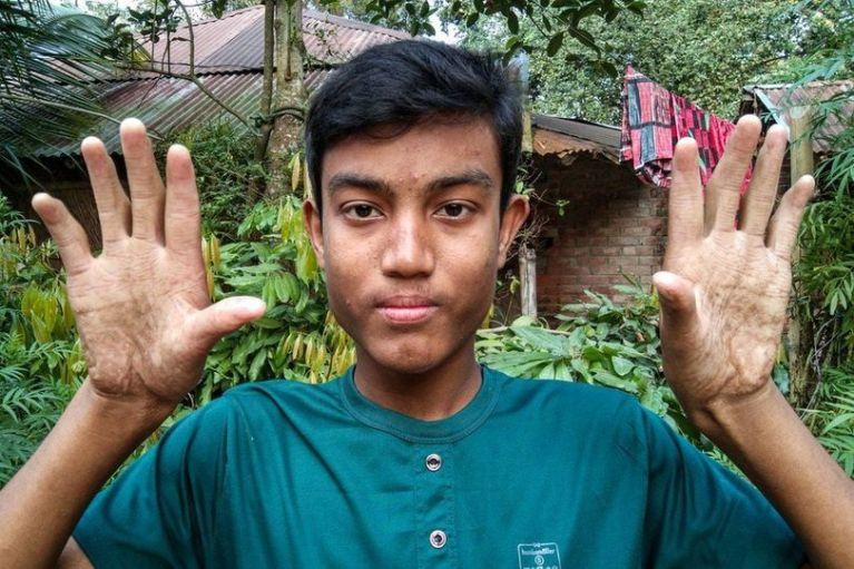 Conheça os homens de Bangladesh que não possuem impressões digitais