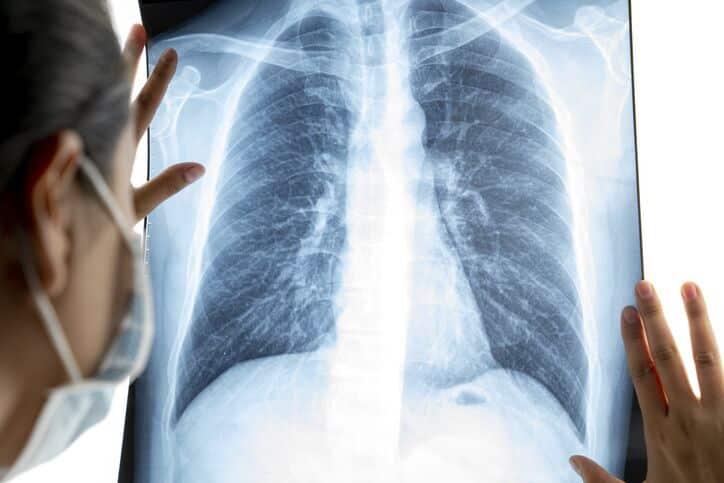 Primeiro transplante de pulmão de doador vivo é feito para mulher com COVID-19