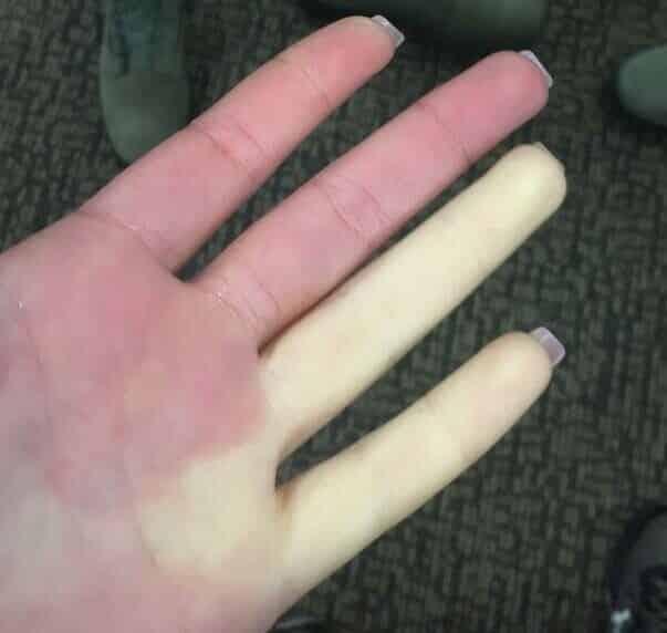 Síndrome de Raynaud, a doença que deixa os dedos temporariamente brancos ou azuis