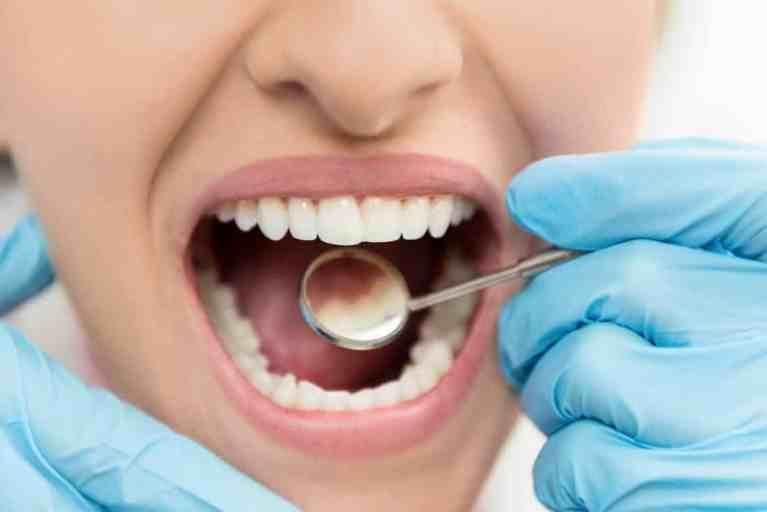 Tratamento dentário pode curar cáries sem nenhuma obturação