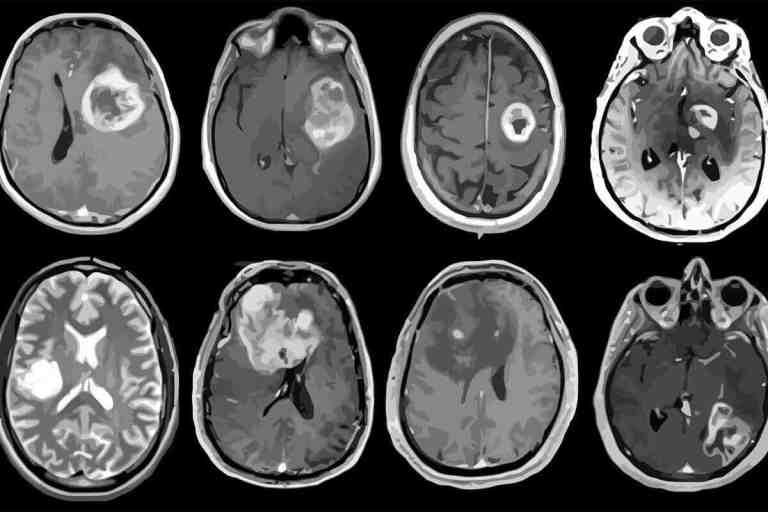 Esse protótipo de capacete magnético encolheu câncer cerebral agressivo