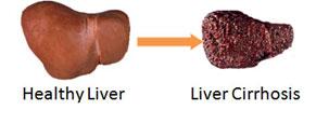 liver chirr
