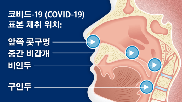 코비드-19 (COVID-19) 표본 채취 위치: 앞쪽 콧구멍, 중간 비갑개, 비인두, 구인두
