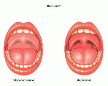 1-сурет: Фарригит - клиникалық отбасылық дәрігер