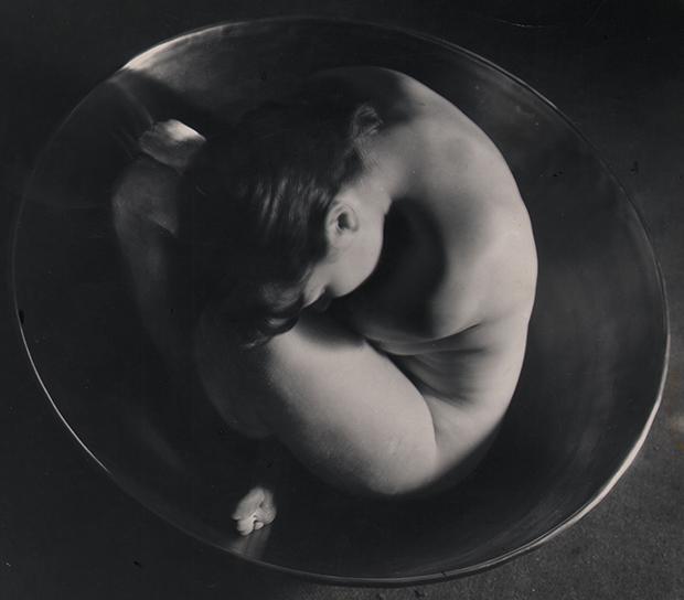 a01.-Bernhard_embryo