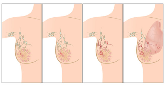 Stage-of-Breast-Cancer