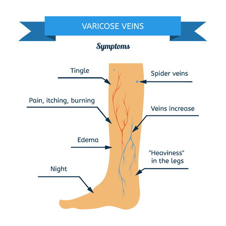 veins in the foot diagram three wire thermostat wiring verifying varicose facts cromwell ct doctor there are plenty of myths that prevent patients from seeking vein treatment when they should s why we put together these about