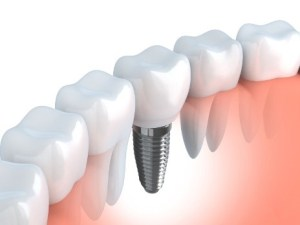 3D image of dental implants