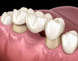 illustration of dental bridge being placed on abutment teeth