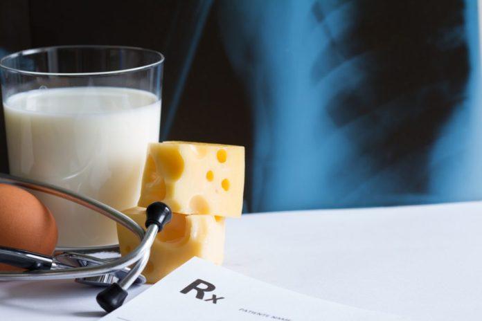 Entendendo melhor a osteoporose