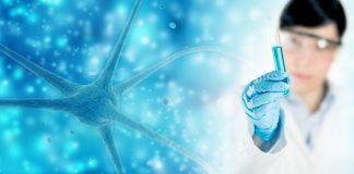 10 alimentos que combatem doença de Alzheimer