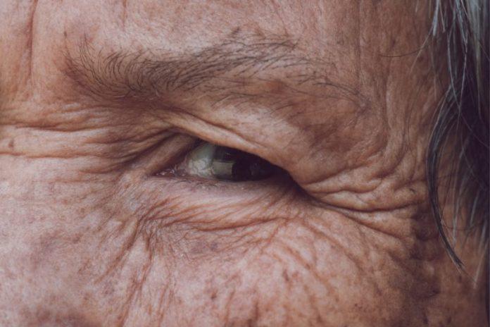 Olhos – Principais alterações com a chegada da terceira idade