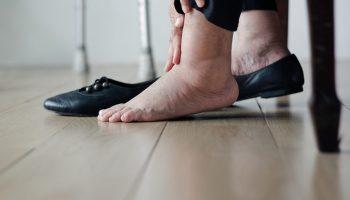 E inchadas são roxas pernas