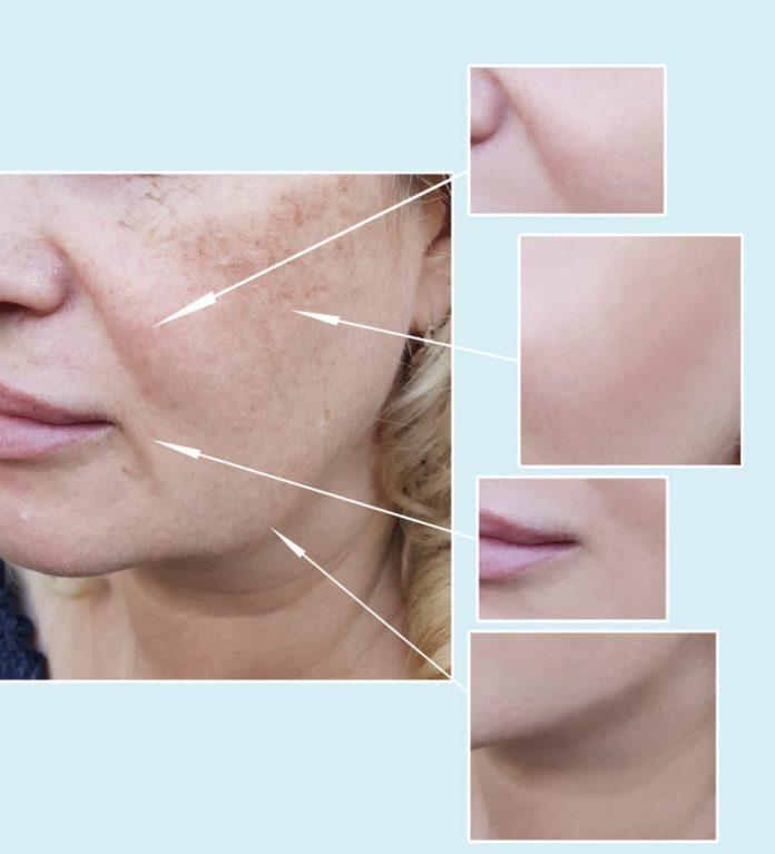 Maquiagem Definitiva: Prós e contras