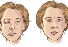 Paralisia Facial - Causas e sintomas