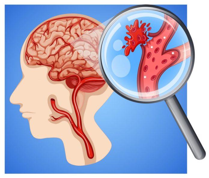 AVC – Veja os sinais de um possível acidente vascular cerebral
