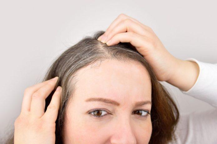 4 receitas naturais para acabar com os cabelos brancos