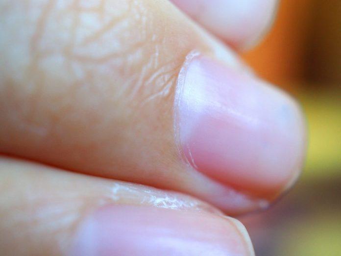 Tirar cutícula - 5 motivos para abandonar essa prática