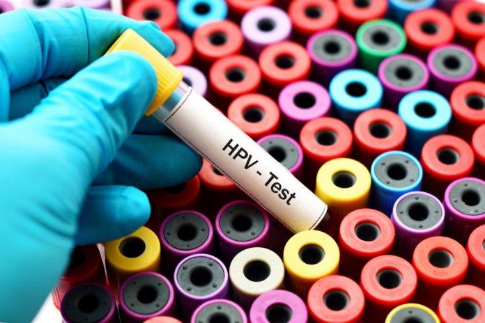 HPV – Como se pega e sintomas