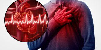 Ataque cardíaco – 4 sintomas que antecedem