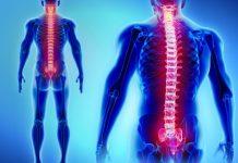 Dor na coluna – 6 atividades que ajudam a tratar