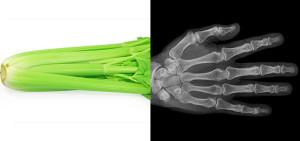 sedano-ossa