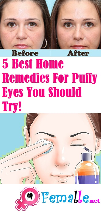 Best Home Remedies For Puffy Eyes You Should Try!