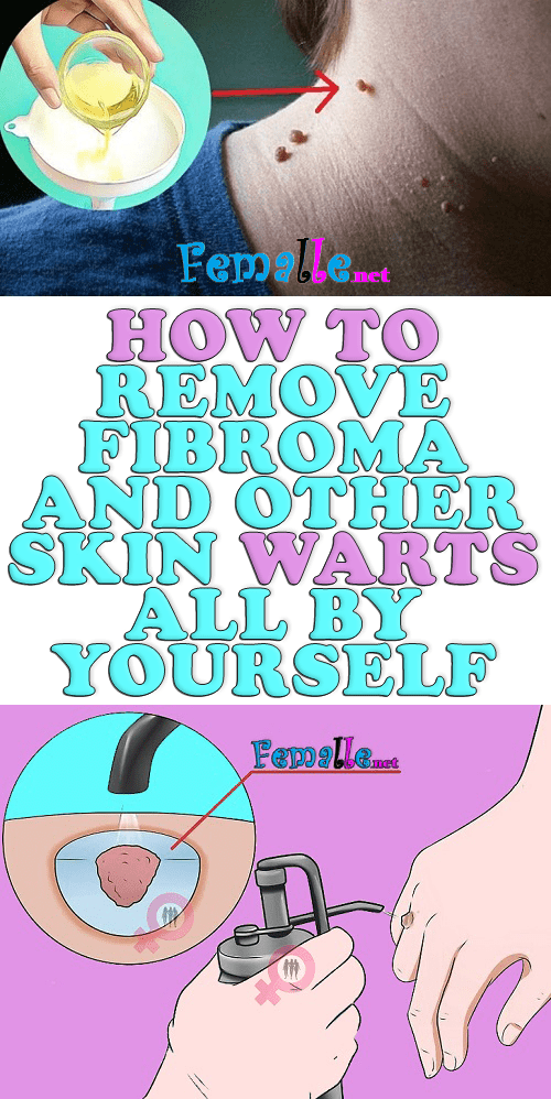 How to Remove Fibroma and Other Skin Warts All By Yourself?