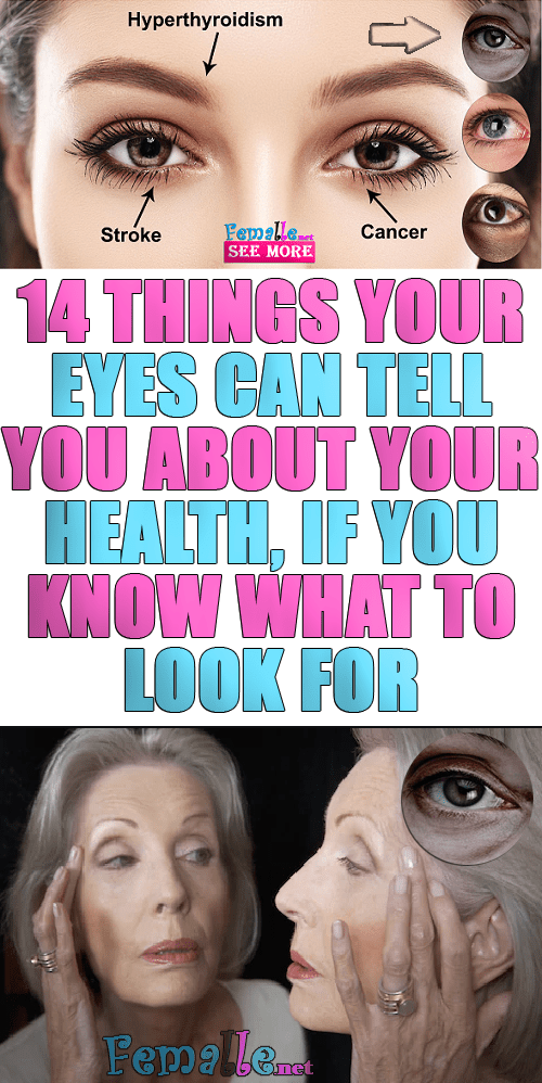 14 Things Your Eyes Can Tell You about Your Health, If You Know What to Look For