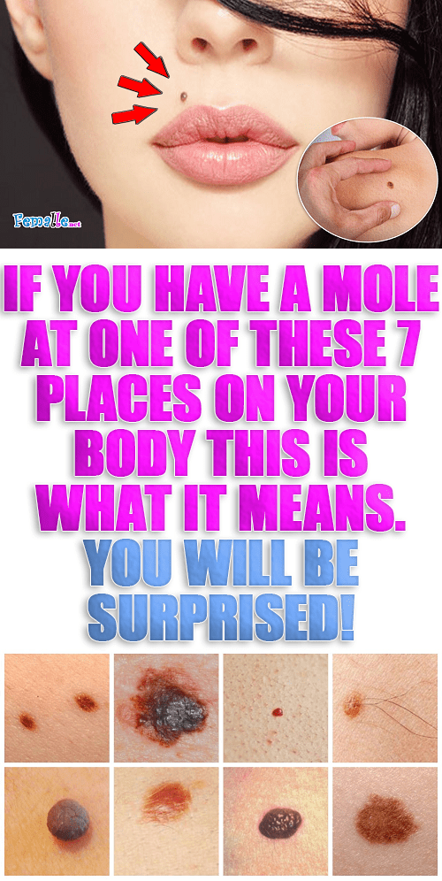 If You Have A Mole At One of These 7 Places on Your Body This is What it Means. You Will Be Surprised!