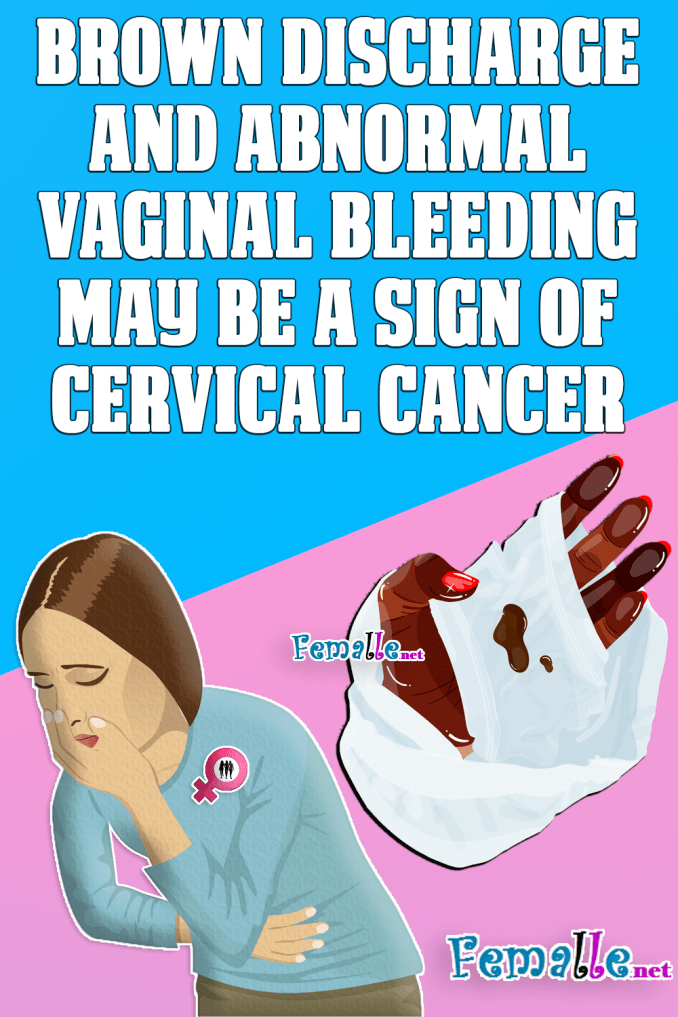Brown Discharge and abnormal Vaginal Bleeding may be a sign of Cervical Cancer