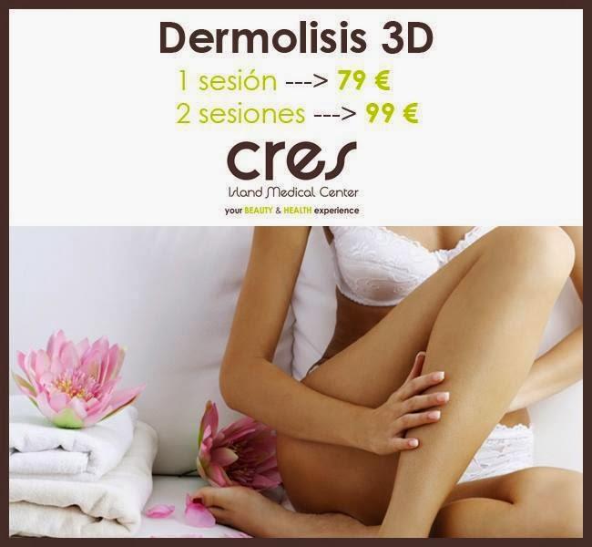 Operación Bikini: La Dermólisis 3D, la nueva liposucción sin cirugía