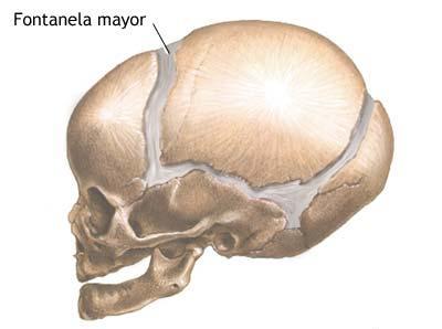 acrocefalia, microcefalia