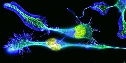 neuronales paisajes