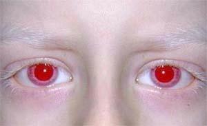albinismo 1A