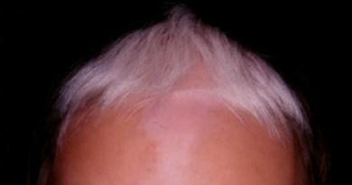 albinismo cabello negro y blanco