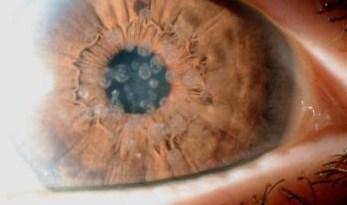 distrofia corneal
