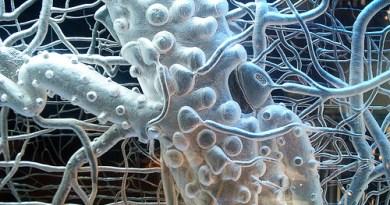 neurona motora inferior