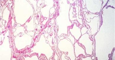 poliquistica hepatica