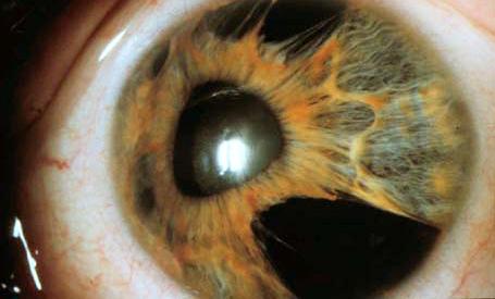 atrofia esencial del iris