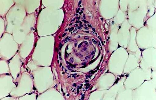 carcinoma timico