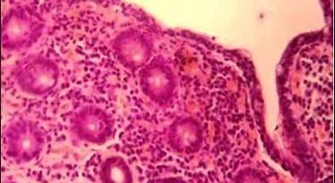 colitis microscopica