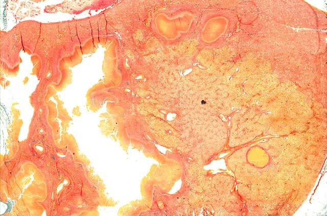 tuberculosis urinaria
